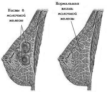 Лечение бородавок салициловой кислотой